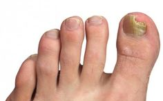 35 Home Remedies for Toenail Fungus Treatment Home Remedies for toenail fungus treatment. How to treat toenail fungus? How to get rid of toenail fungus with home remedies? Toenail Fungus Home Remedies, Fingernail Fungus, Toenail Fungus Treatment, Nail Treatment, Toe Fungus, Fungal Nail Infection, Hair And Beauty, Healing