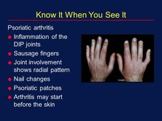Reactive Arthritis is a type of arthritis that occurs as a result of an infection in the body. When one gets an infection the body reacts by triggering this form of arthritis. Typical infections triggering this form of arthritis are u Spinal Arthritis, Reactive Arthritis, Yoga For Arthritis, Psoriasis Arthritis, Natural Remedies For Arthritis, Rheumatoid Arthritis Treatment, Knee Arthritis, Rheumatoid Arthritis Symptoms, Fibromyalgia