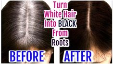 Best Remedy To Turn White Hair Into Black From Roots.In this video I show you how to make Grey Hair Hair Oil to regenerate lost hair melanine & reverse grey . Oily Hair, Moisturize Hair, Grey Hair Problem, Grey Hair Treatment, Black And Grey Hair, Prevent Grey Hair, Premature Grey Hair, Frontal Hairstyles, Rose Gold Hair