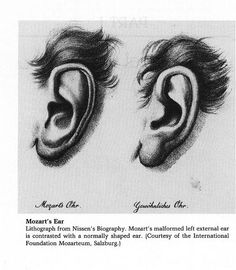 Mozart's ear, left. A very rare malformation.