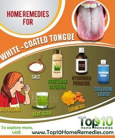 Home Remedies to Get Rid of White-Coated Tongue Easily and Naturally.