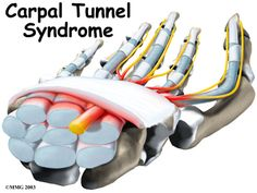 Hand Conditions | Carpal Tunnel Syndrome | Methodist Orthopedics & Sports Medicine in the Greater Houston Area, TX
