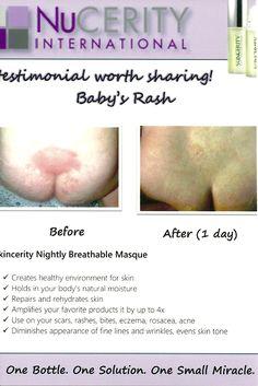 Skincerity & Diaper rash