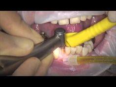 Una práctica innovación tanto para el dentista como para el técnico dental son las tiras Fleximeter. Las Tiras Fleximeter son calibres flexibles de tres espesores diferentes para medir la altura de la preparación mientras se liman los dientes para la reconstrucción (por ej., coronas, puentes o coronas dobles). Se pueden emplear las Fleximeter-Strips también con espesores de 1,0 mm, 1,5 mm y 2,0 mm para aumentar de manera precisa el tamaño vertical (altura oclusal).