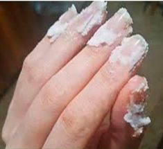 If you want to grow your nail longer and healthier, then apply Baking soda on it - Mund- und Zahngesundheit 2020 Great Nails, My Nails, Baking Soda Nails, Baking Soda On Carpet, Nail Infection, Insect Bites, Nail Brushes, Nail Fungus, Healthy Nails