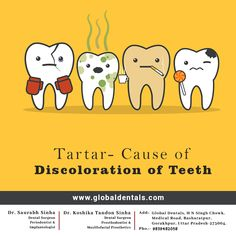Global Dentals is a dental clinic in Gorakhpur. We provide extensive dental treatment in the Gorakhpur area. Team of Best Dentists in Gorakhpur is leading by Orthodontist Dr. Dental Surgeon, Dental Implants, Best Dentist, Dentist In, Dental Hospital, Root Canal Treatment, Dental Cosmetics, Best Oral