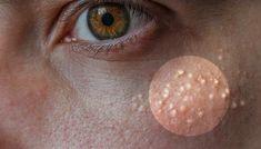 Effektive naturlige måter for å bli kvitt små hvite klumper rundt nesen og kinnet! - OnlineNytt