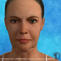 Wonderful Facelift Miami, Hialeah, Broward | Vanity Cosmetic Surgery