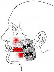 Masseter - Trigger Point Map