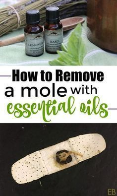 How to Remove a Mole with Essential Oils
