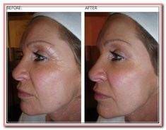 A good anti-aging product will not pose any threat to the safety of your skin. Most anti-aging products need to be injected into the skin. Anti Aging Eye Cream, Anti Aging Tips, Best Anti Aging, Anti Aging Skin Care, Anti Aging Products, Pole Dancing, Dancing Shoes, Beauty Hacks For Teens, Anti Aging Treatments