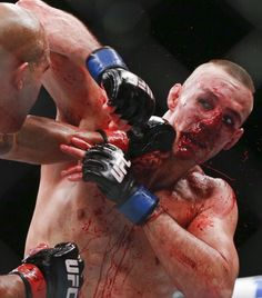 bloody MASSACRE between Robbie Lawler & Rory MacDonald at #UFC189 : if you…