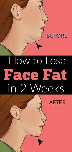 Do you want to reduce face fat and neck fat fast? Find here how to lose weight in your face fast in 2 weeks with facial exercises and home remedies. Reduce Face Fat, Lose Weight In Your Face, Lose Fat, Weight Loss Blogs, Weight Loss Help, Smoothie Detox, Smoothies, Bloated Face, Cheek Fat