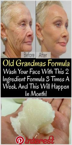 Using coconut oil for anti aging is a natural way to give skin a boost. Discover several easy methods to apply it to fight wrinkles and fine lines. Oil Face Wash, Wash Your Face, Face And Body, Face Face, Face Oil, Beauty Skin, Health And Beauty, Baking Soda Shampoo, Coconut Oil For Face