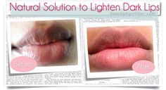 Want super-pink lips? Or looking to lighten dark lips? Check out how to lighten dark lips - swiftly and naturally.  #beauty, #beauty_tips, #lighten_your_lips, #beauty_tricks