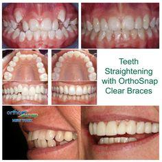 #OrthoSnapNewYork #clearbraces #invisiblebraces #adultbraces #straightteeth #teethstraightening #invisalign #braces #crookedteeth #smile #teeth #newyork #newyorkcity #manhattan #brooklyn #beautifulsmile #newyorkers #newyorkstyle #orthosnap #teethalignment #teethgoals #nobraces #bracesoff #nomorebraces #tooth #orthodontist #instasmile #dentist #dentistry #beauty