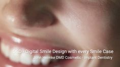 Cosmetic Dentistry | Dental Implants | DSD-DigitalSmile Design Cleveland... Implant Dentistry, Cosmetic Dentistry, Dental Implants, Facial Aesthetics, Missing Teeth, Smile Design, Aesthetic Design, Natural Looks, Cleveland