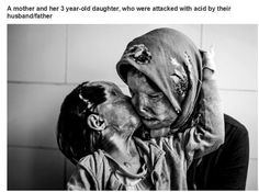 A mother and her 3 year old daughter who were attacked with acid by their husband/father.