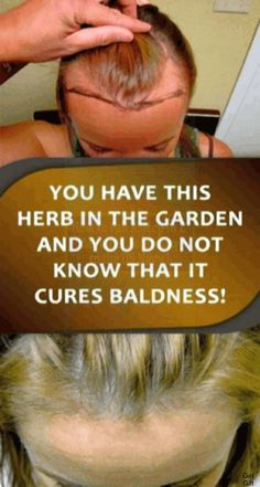 YOU HAVE THIS HERB IN THE GARDEN AND YOU DO NOT KNOW THAT IT CURES BALDNESS!!!.. Natural Life, Natural Living, Natural Healing, Healing Herbs, Gut Health, Health And Nutrition, Health Tips, Health Guru, Proper Nutrition