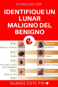 Lunares en la piel | IDENTIFIQUE UN LUNAR MALIGNO DEL BENIGNO | Los lunares, esas manchitas de color oscuro de forma circular que aparecen en distintas zonas de la piel en el cuerpo son considerados tumores benignos...
