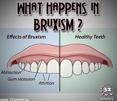 """""""Get Your Bite Right"""" with dr. Merz at Torrey Pines Orthodontics and you can avoid this disaster!"""