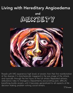 HAE, hereditary angioedema, chronic illness, pain