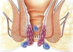 Benefits of Piles Care Herbal Capsules - Ayurleaf Herbals Hedonzal | AyurLeaf Herbals