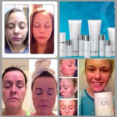 New Skin Care Products from Herbalife - Pictures show real amazing results!  Contact me here for more info http://azenza.co.uk