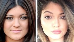Kylie Jenner Plastic Surgery Before and After - Nose Job, Brow Lift, Lip Fillers, Nasolabial Fillers and Chin Reduction