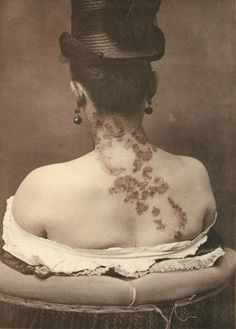 George Henry Fox & O. Mason, from Photographic Atlas of the Diseases of the Skin, unnamed condition. Sigmund Freud, Creepy, Medical Photography, Human Oddities, Girl Birthday Cards, Vintage Medical, Alternate History, Medical Science, Medical History