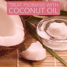 Here we are providing the best coconut oil methods for treating psoriasis and its symptoms.