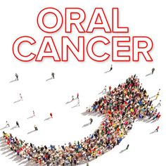 Oral Cancer in Men Caused by Sexually Transmitted Virus Is on the Rise