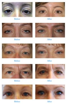 Cosmetic Eyelid Surgery: 13 Interesting Facts about ...  Celebrity Lower Blepharoplasty