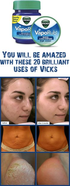 Remedies For Skin Vicks VapoRub is commonly used in the treatment of headaches, cold, cough, stuffy nose, throat and chest. We have some more good news for you. Vicks VapoRub is even more powerful than this. Vicks Vaporub, Home Remedies, Natural Remedies, Health Remedies, Beauty Secrets, Beauty Hacks, Beauty Tips, Diy Beauty, Beauty Products