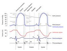 Wiggers Diagram - Wiggers diagram - Wikipedia, the free encyclopedia