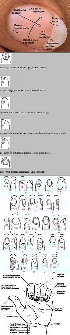 (+1) тема - Диагностика по ногтям в восточной медицине | ВСЕГДА В ФОРМЕ!