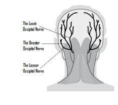 Multiple Sclerosis (MS) Symptoms: Occipital Neuralgia Occipital neuralgia, also known as neuralgia or, rarely, Arnold's neuralgia, is a medical. Chronic Migraines, Chronic Pain, Fibromyalgia, Chronic Illness, Neuralgia Symptoms, Occipital Neuralgia, Occipital Nerve Block, Blocked Ears, Multiple Sclerosis Funny