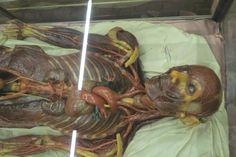 cera anatomica che mostra i vasi linfatici
