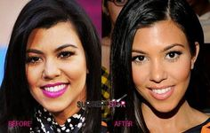 Kourtney Kardashian Nose Job Surgery Before and After