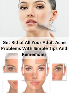 Adult Acne can be troublesome, but by choosing some simple tips and tricks; you can get rid of without spending money on expensive creams and treatments