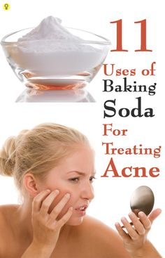 11 Effective Ways To Use Baking Soda For Treating Acne : The excess oil is responsible for breakout of pimples and blackheads. The greatest benefit of this home remedy is that it is absolutely easy to use and cheap.