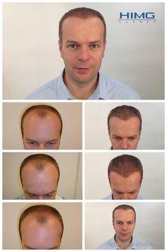 Lajtos Tamás - 7000 hajszál beültetése - HIMG Klinika  Tamásnak a homloka környékén alig volt haja. A beavatkozást két nap alatt végeztük és a hajbeültetési eredménye 11 hónappal később vált láthatóvá. Természetes kinézet a HIMG Klinikával.  http://hajgyogyaszatszeged.hu/
