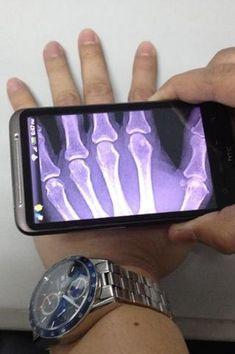 Medical Technology Gadgets Ideas For 2019 New Gadgets, Gadgets And Gizmos, Techno Gadgets, High Tech Gadgets, Medical Technology, Science And Technology, Disruptive Technology, Technology Design, Future Of Technology