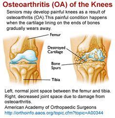 Osteoarthritis of the Knees