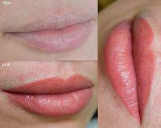 Ημιμονιμο Μακιγιάζ σε χείλη    Permanent Makeup lips immediately after