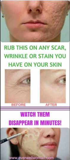 Get rid of WRINKLES, SCARS from your face magically with this remedy – 🆅🆅Ⓦ🆅🆅
