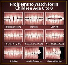 Children usually start losing their baby teeth from around six years of age. From 6-12 years, children have a mixture of adult and baby teeth. The baby teeth at the back are replaced around 10-12 years of age. By this age, most children have all their adult teeth except for the third molars (wisdom teeth).