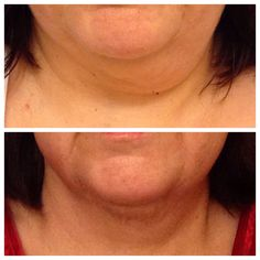 Works wonder on chin and neck area too! www.lauriday.nerium.com