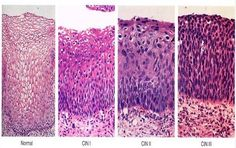 Cervical Intraepithelial Neoplasia Stages