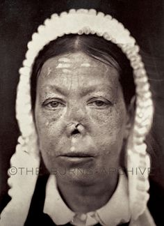 Ozena: Tuberculosis of the Nose, Circa 1870.The dreaded infection 'Ozena' was an ailment of much prominence in the pre-antibiotic era because it accompanied many infectious diseases of the nose. The infection of the nasal cavities resulted in a foul nasal discharge & a fetid breath. Ozena is mainly seen today as a marked degeneration of the nasal mucosa. This occurs most commonly as a hereditary malady but is also associated with the over use of nasal sprays & drops.